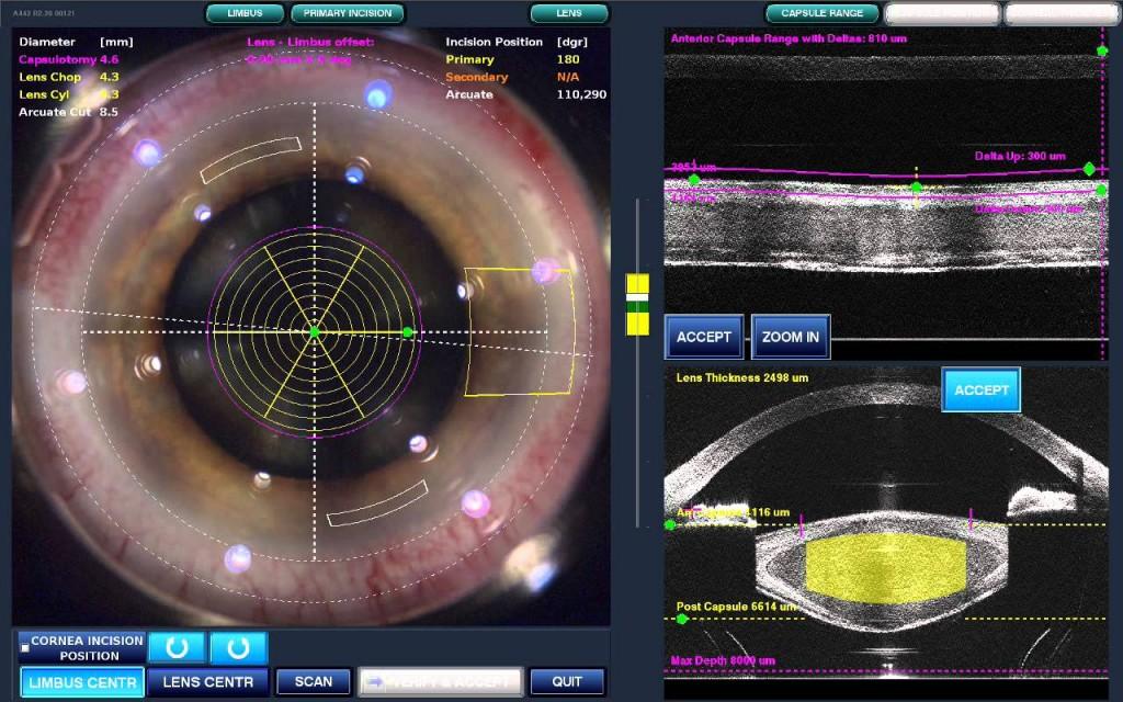 Cataracts Treatment | Smithfield NC | Cary NC